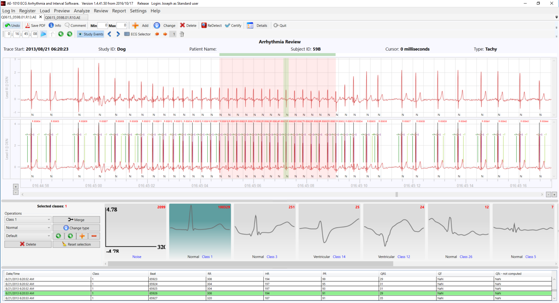 VivaQuant - ECG Analysis Software