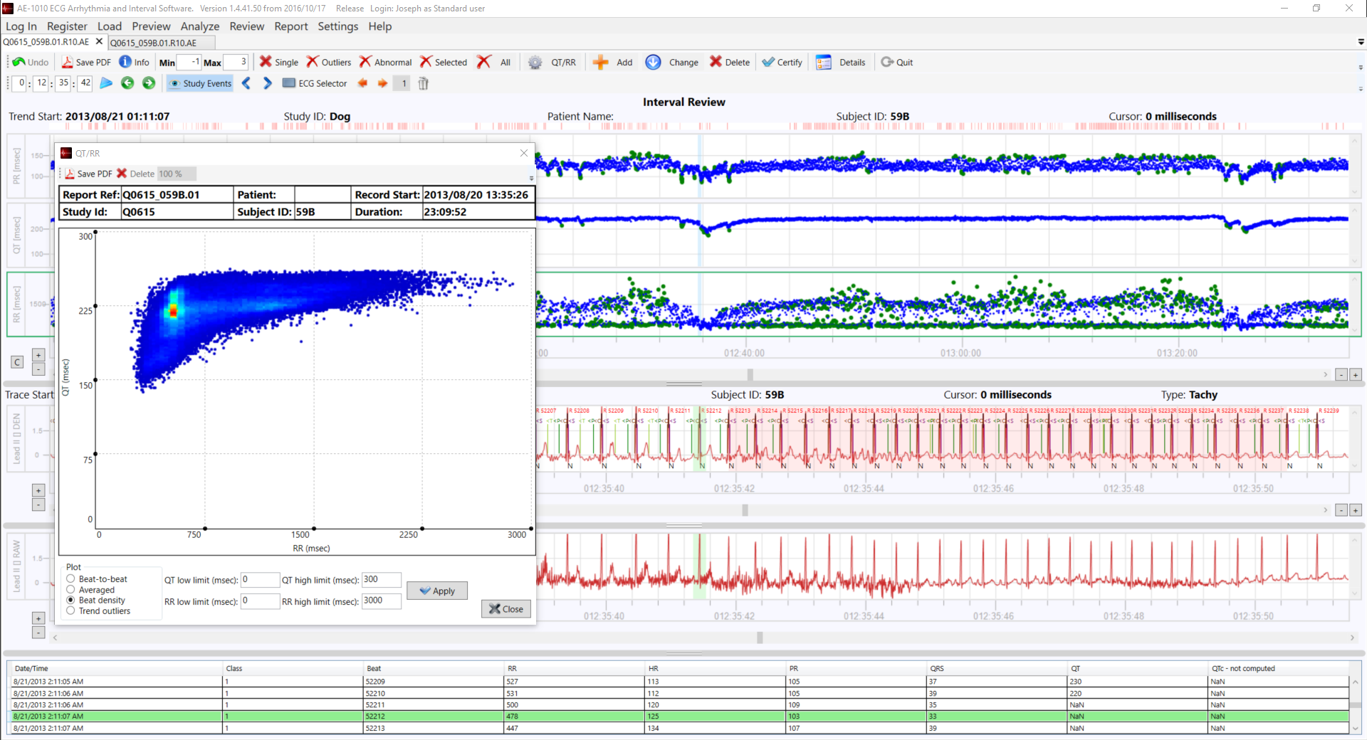 VivaQuant - ECG Analysis Software